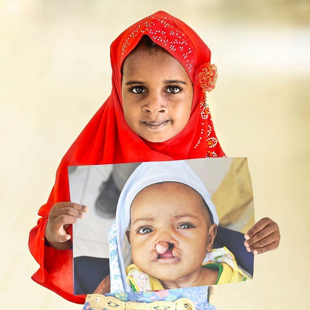 Picture of Treatment of cleft lip disease