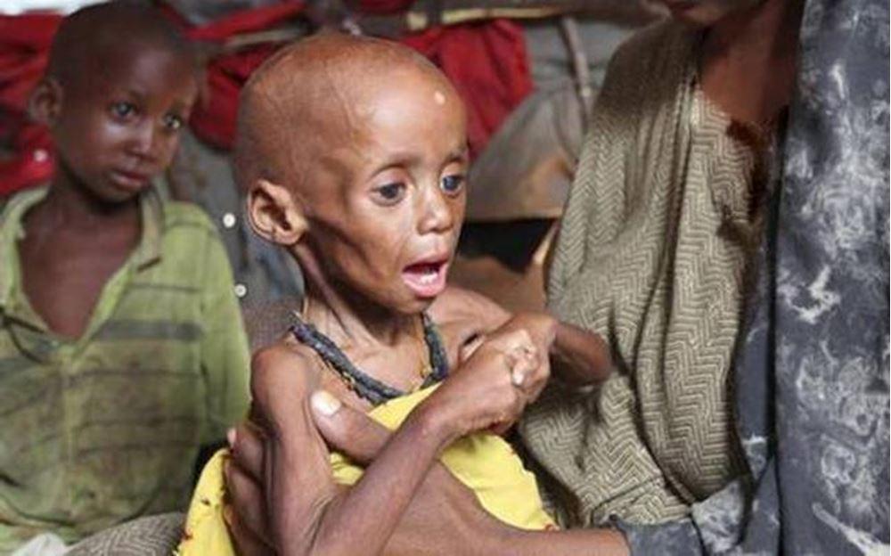 صورة تغذية أطفال النيجر - رقم المشروع: 4838/2019