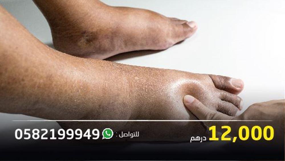 صورة رجل يعاني من صعوبة بالحركة وتورم بالقدمين